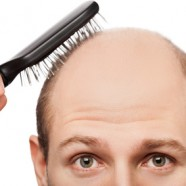 Hair Loss Treatments for Men and Women