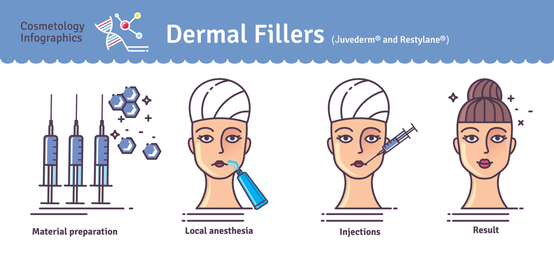 The Advantages of Dermal Fillers