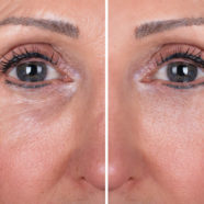 Dermal Fillers and Anti Aging