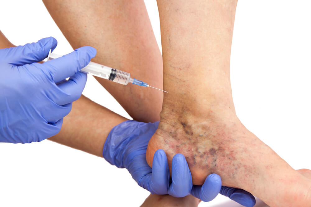 Benefits of Undergoing Sclerotherapy for Spider Vein Treatment in Raleigh